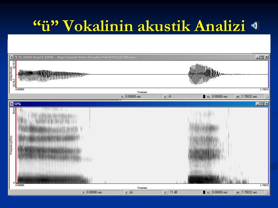 ü Vokalinin akustik Analizi