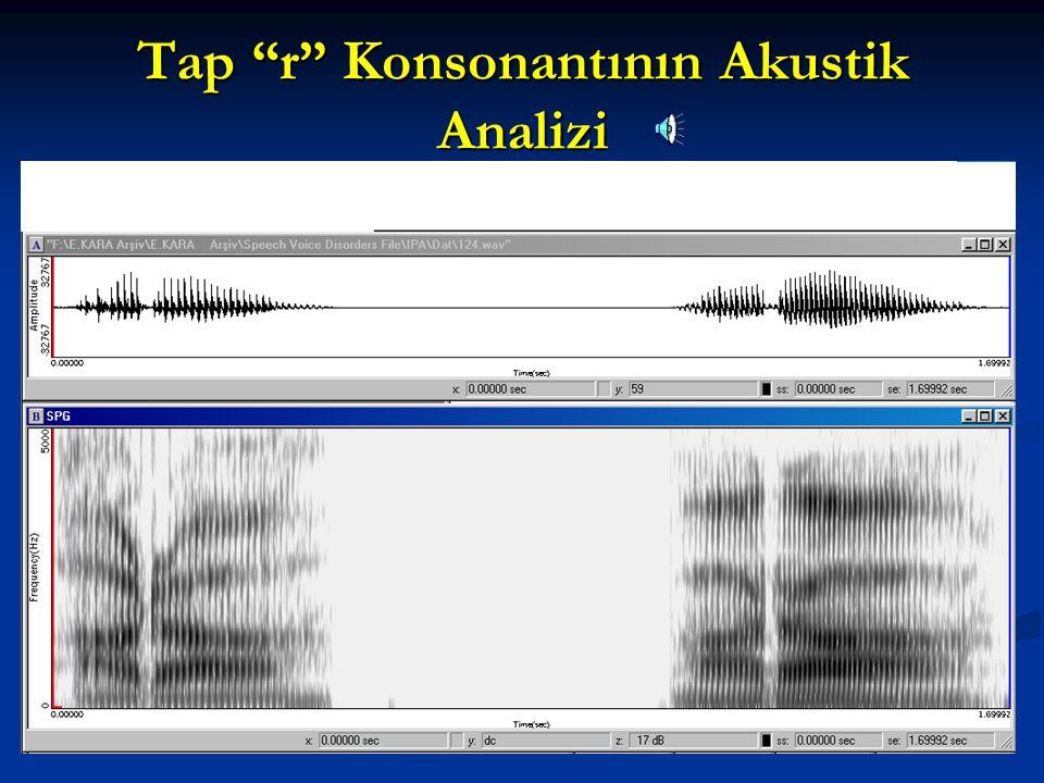Tap r Konsonantının Akustik Analizi