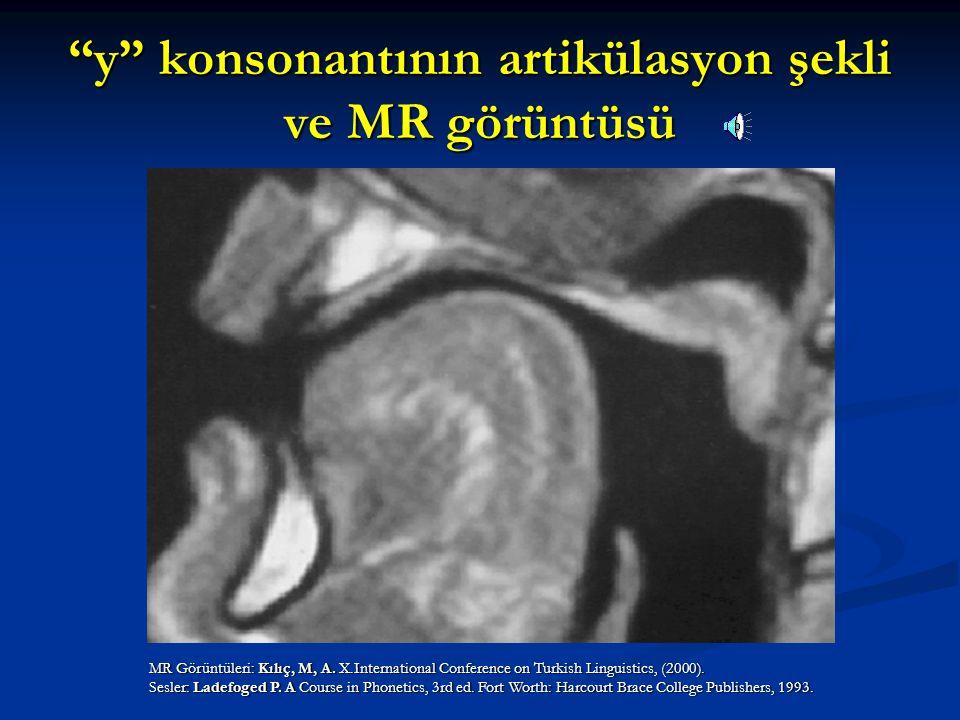 y konsonantının artikülasyon şekli ve MR görüntüsü
