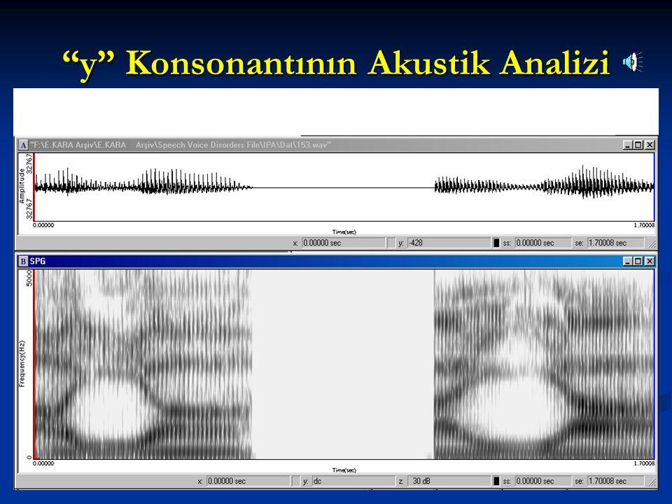 y Konsonantının Akustik Analizi