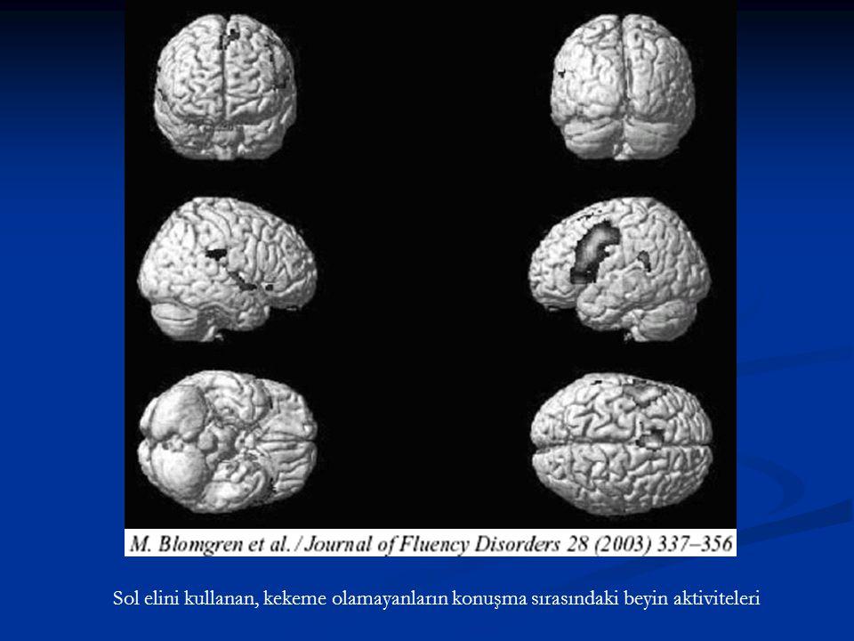 Sol elini kullanan, kekeme olamayanların konuşma sırasındaki beyin aktiviteleri
