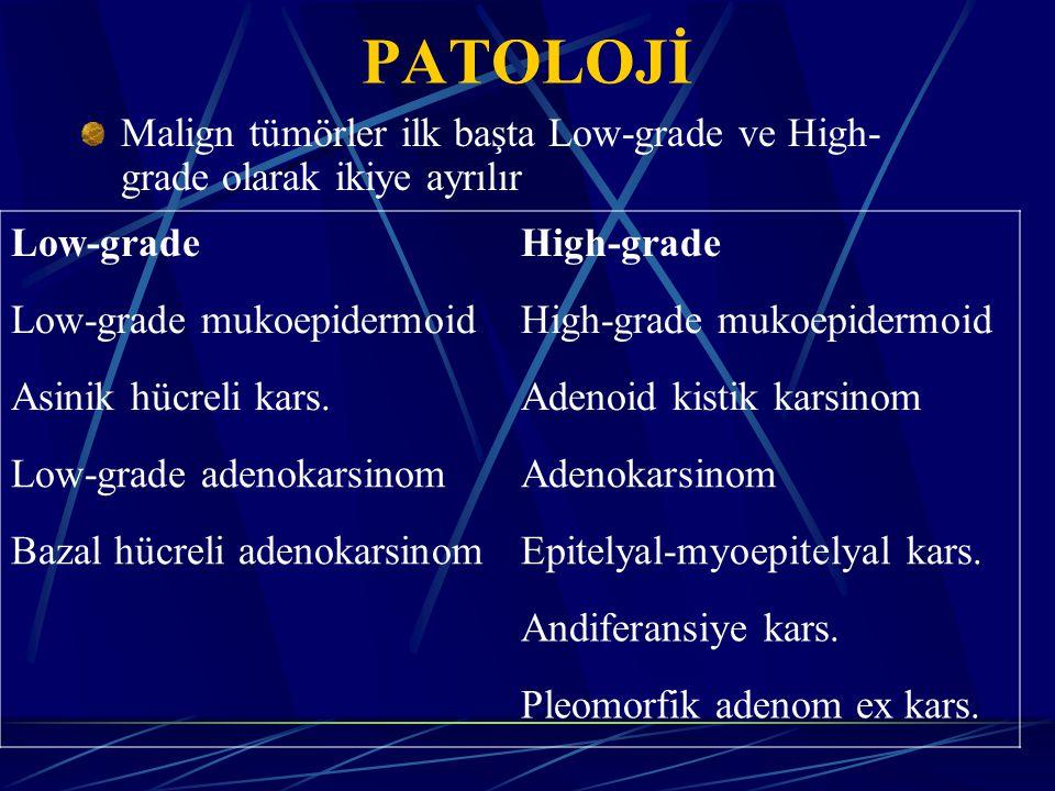 PATOLOJİ Malign tümörler ilk başta Low-grade ve High-grade olarak ikiye ayrılır. Low-grade. High-grade.