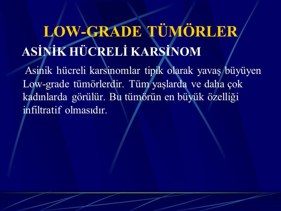 LOW-GRADE TÜMÖRLER ASİNİK HÜCRELİ KARSİNOM