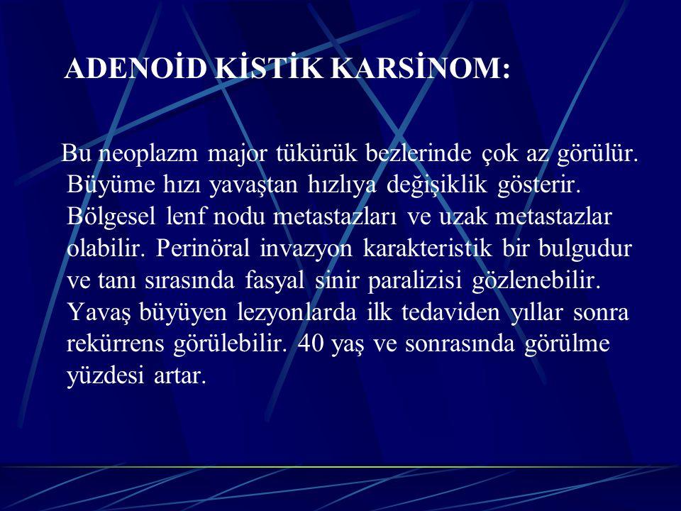 ADENOİD KİSTİK KARSİNOM: