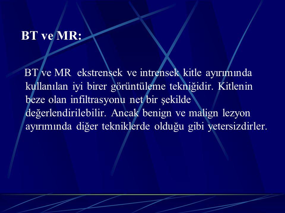 BT ve MR: