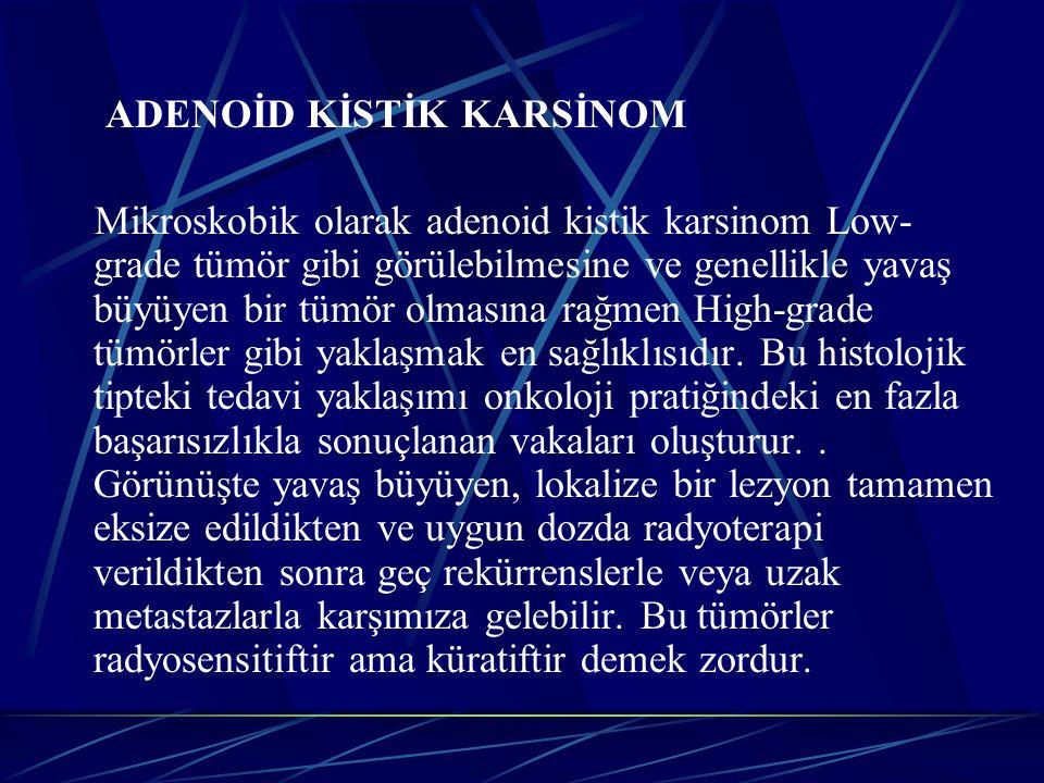 ADENOİD KİSTİK KARSİNOM