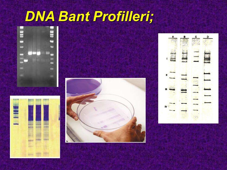 DNA Bant Profilleri;