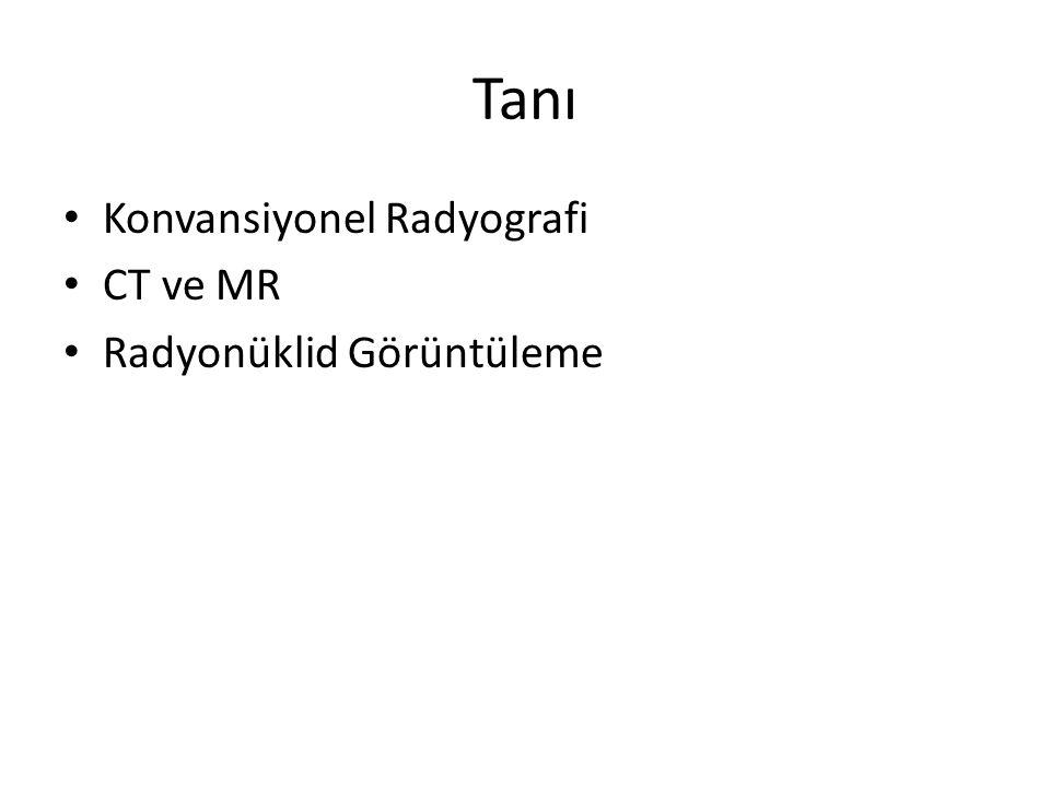 Tanı Konvansiyonel Radyografi CT ve MR Radyonüklid Görüntüleme