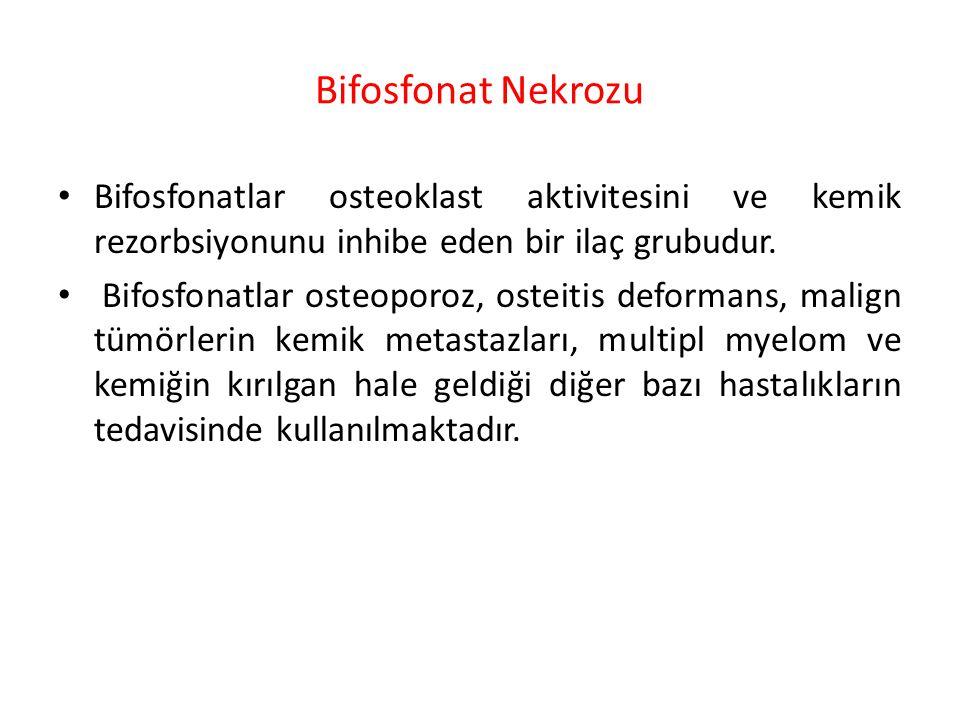 Bifosfonat Nekrozu Bifosfonatlar osteoklast aktivitesini ve kemik rezorbsiyonunu inhibe eden bir ilaç grubudur.