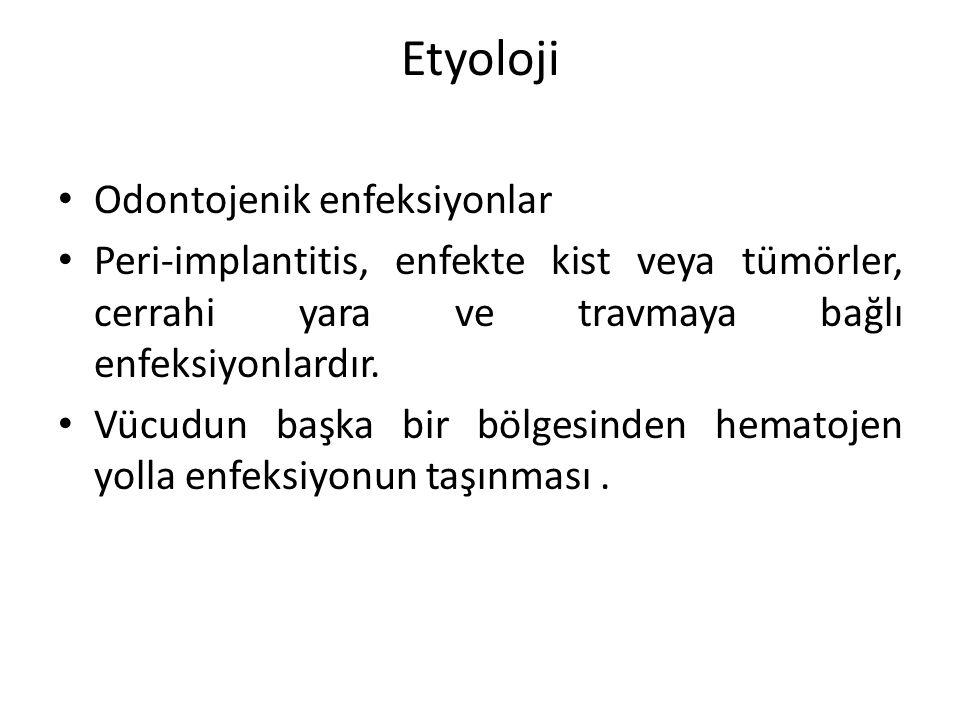 Etyoloji Odontojenik enfeksiyonlar