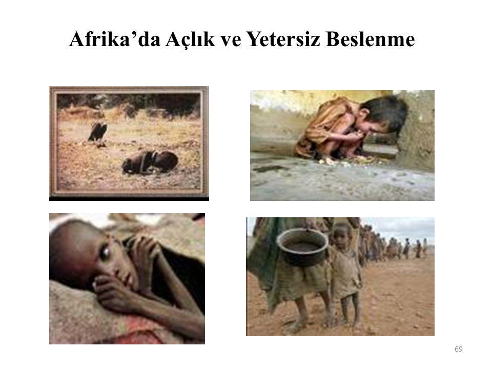 Afrika'da Açlık ve Yetersiz Beslenme