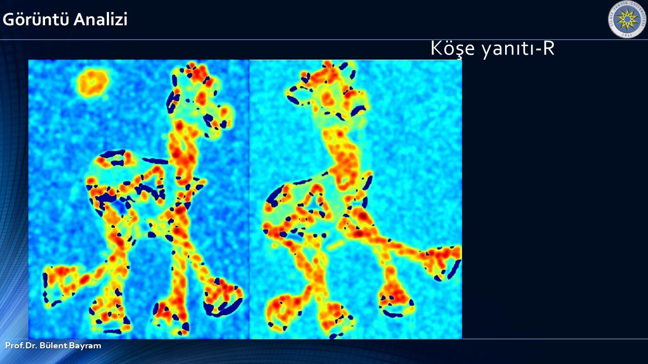 Görüntü Analizi Köşe yanıtı-R Prof.Dr. Bülent Bayram