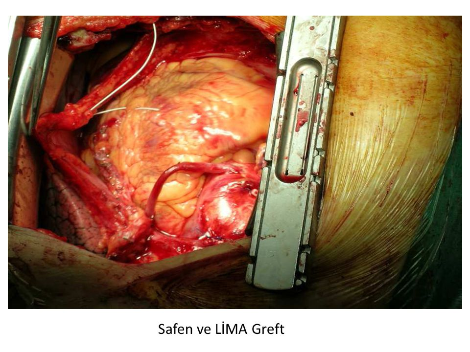 Safen ve LİMA Greft