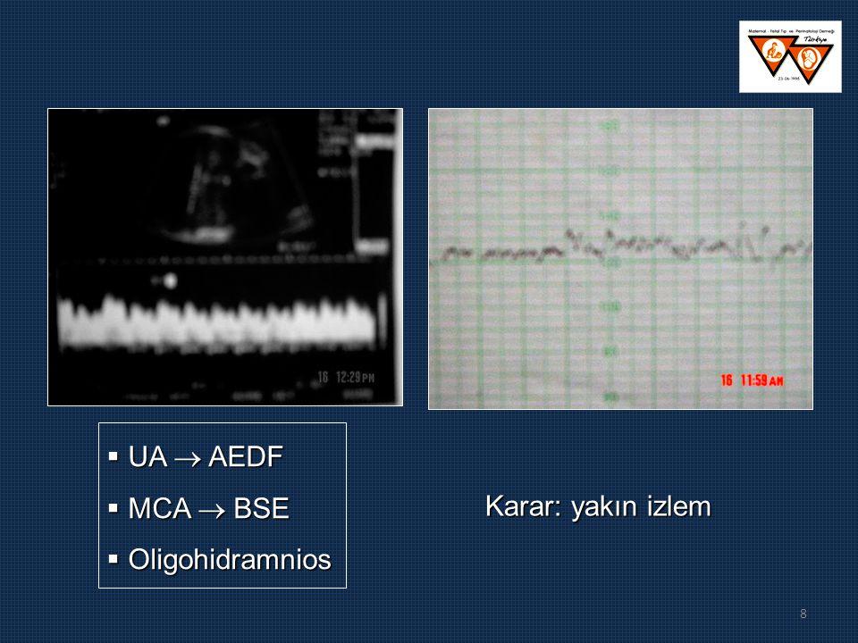UA  AEDF MCA  BSE Oligohidramnios Karar: yakın izlem