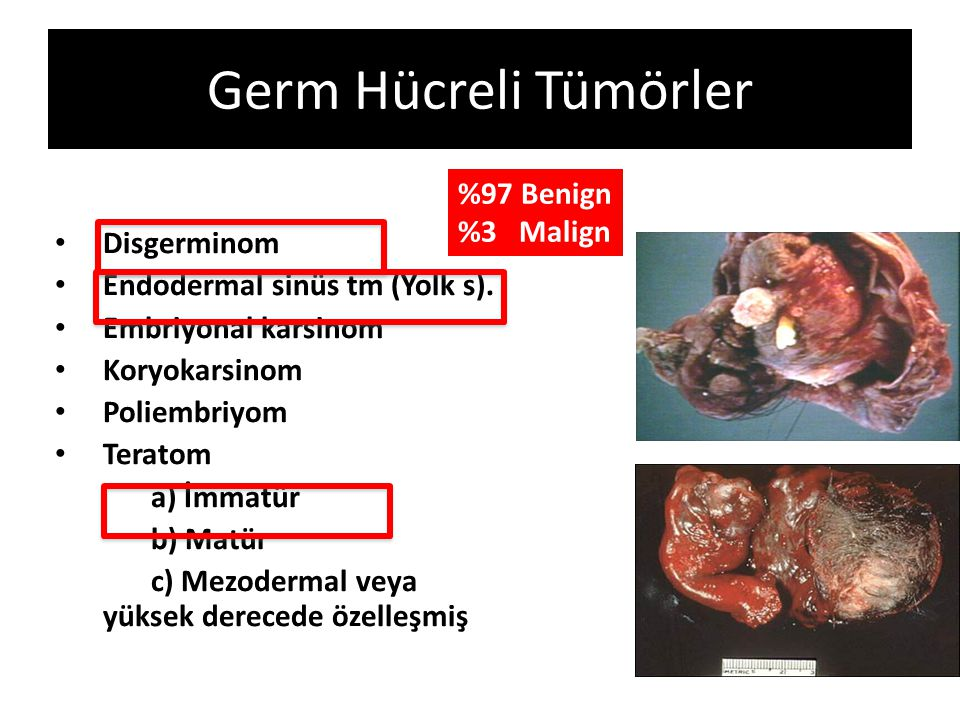 Germ Hücreli Tümörler %97 Benign %3 Malign Disgerminom