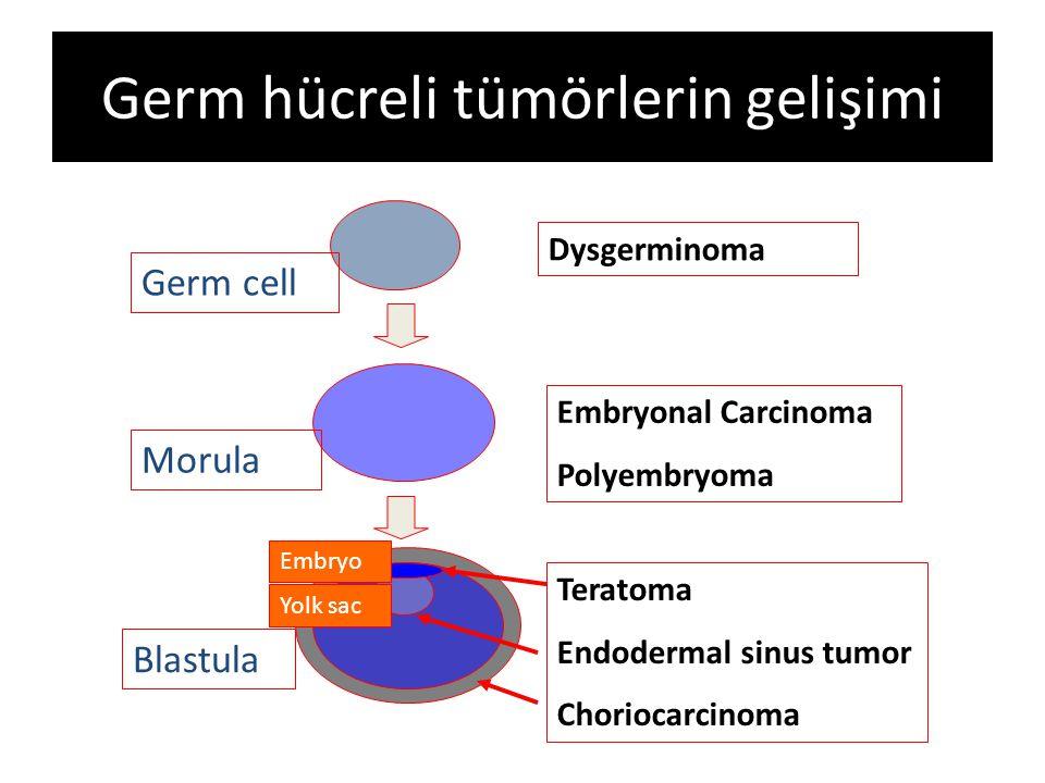 Germ hücreli tümörlerin gelişimi