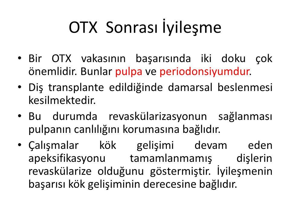 OTX Sonrası İyileşme Bir OTX vakasının başarısında iki doku çok önemlidir. Bunlar pulpa ve periodonsiyumdur.