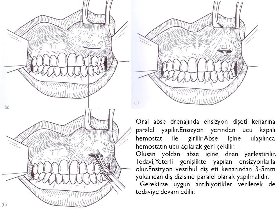 Oral abse drenajında ensizyon dişeti kenarına paralel yapılır