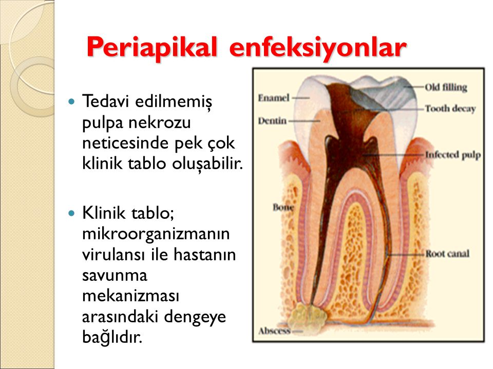Periapikal enfeksiyonlar