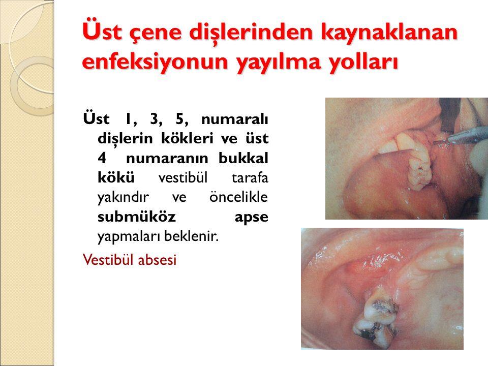 Üst çene dişlerinden kaynaklanan enfeksiyonun yayılma yolları