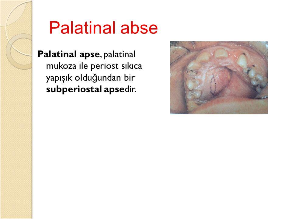 Palatinal abse Palatinal apse, palatinal mukoza ile periost sıkıca yapışık olduğundan bir subperiostal apsedir.
