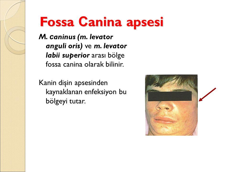 Fossa Canina apsesi M. caninus (m. levator anguli oris) ve m. levator labii superior arası bölge fossa canina olarak bilinir.