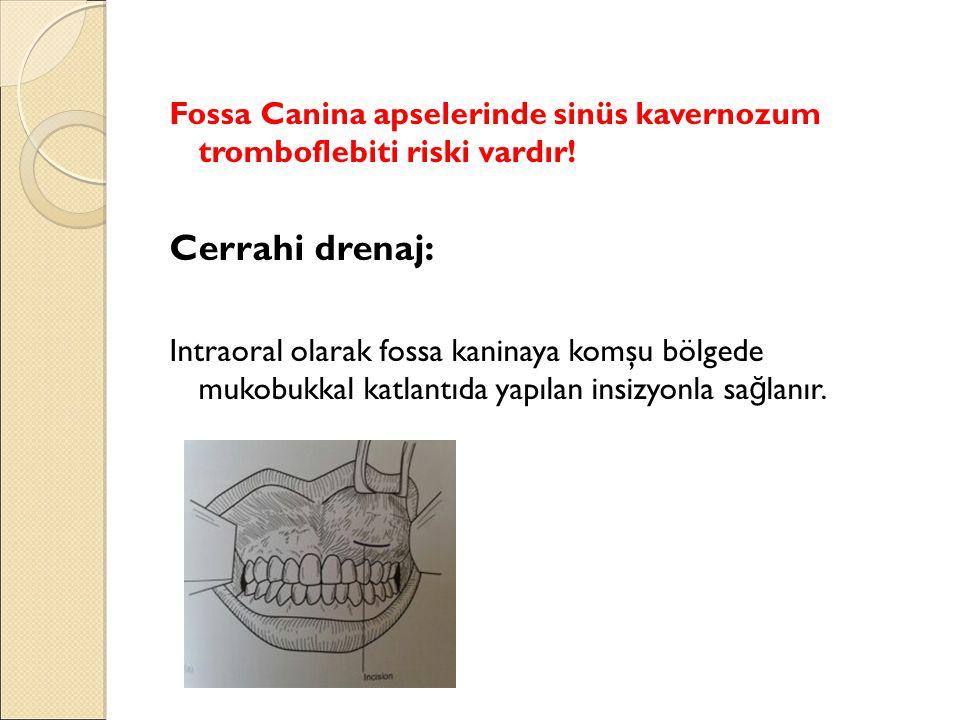 Fossa Canina apselerinde sinüs kavernozum tromboflebiti riski vardır!