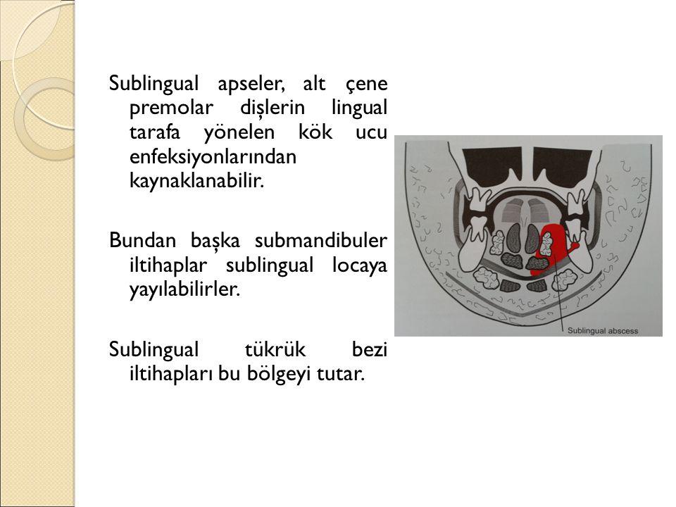 Sublingual apseler, alt çene premolar dişlerin lingual tarafa yönelen kök ucu enfeksiyonlarından kaynaklanabilir.