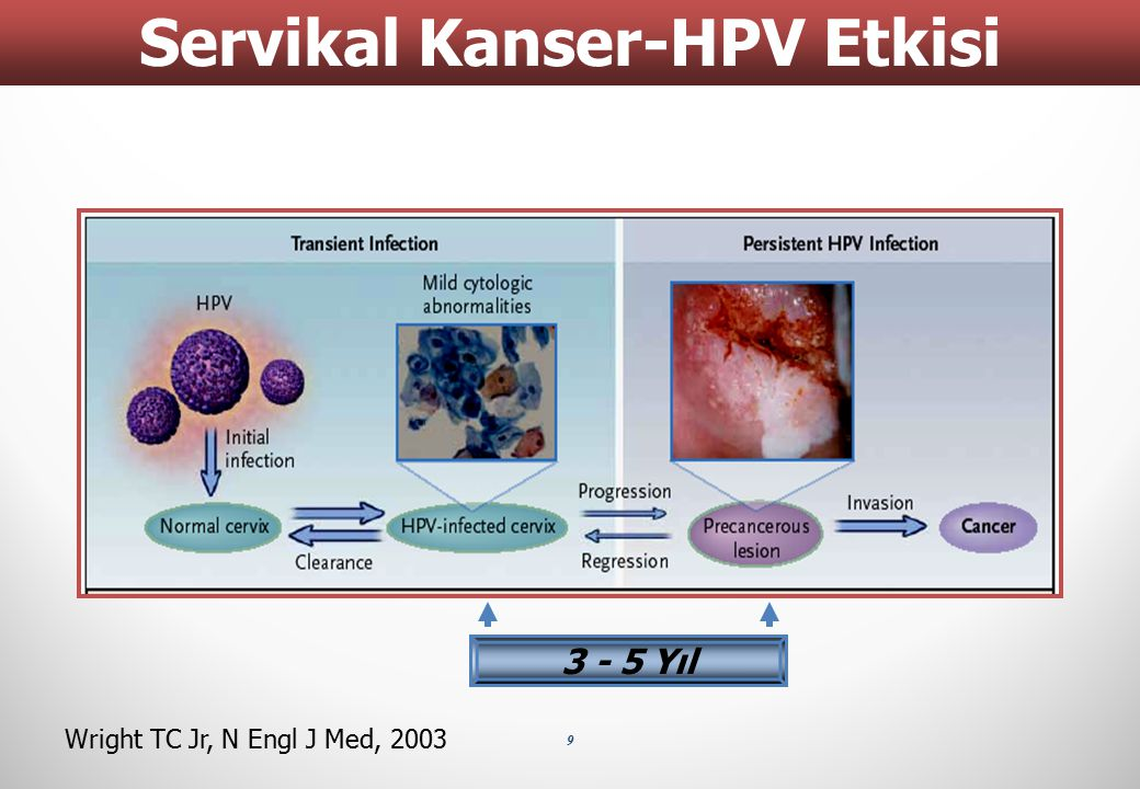 Servikal Kanser-HPV Etkisi