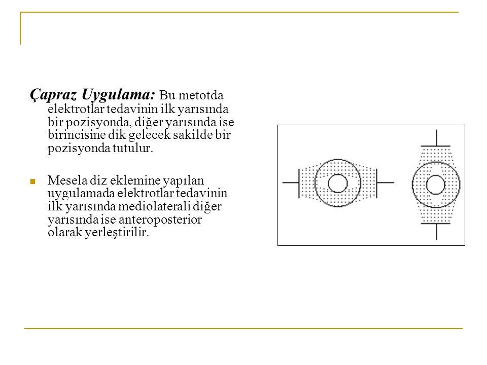 Çapraz Uygulama: Bu metotda elektrotlar tedavinin ilk yarısında bir pozisyonda, diğer yarısında ise birincisine dik gelecek sakilde bir pozisyonda tutulur.