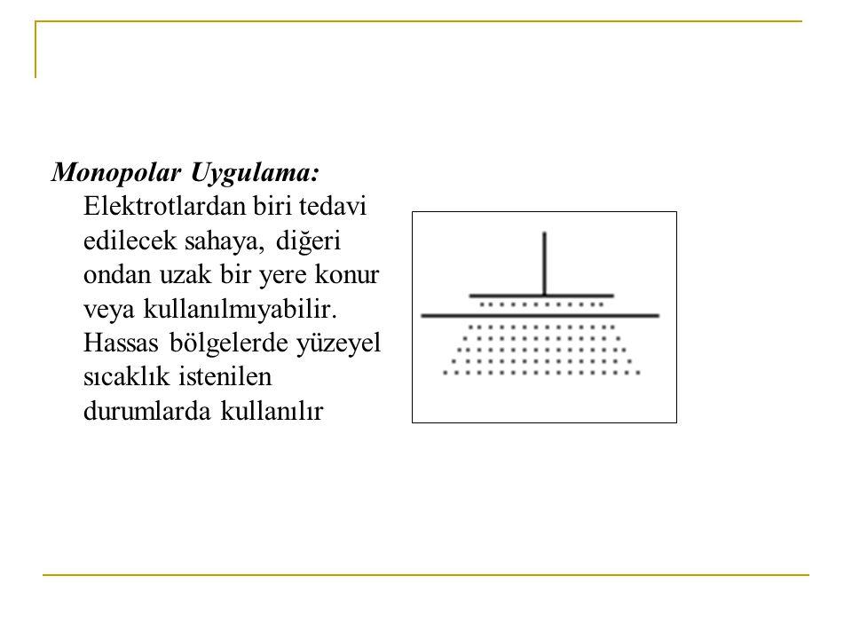 Monopolar Uygulama: Elektrotlardan biri tedavi edilecek sahaya, diğeri ondan uzak bir yere konur veya kullanılmıyabilir.