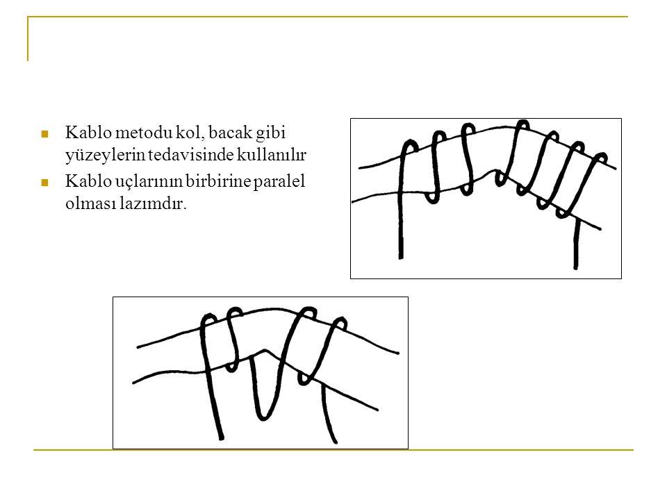 Kablo metodu kol, bacak gibi yüzeylerin tedavisinde kullanılır
