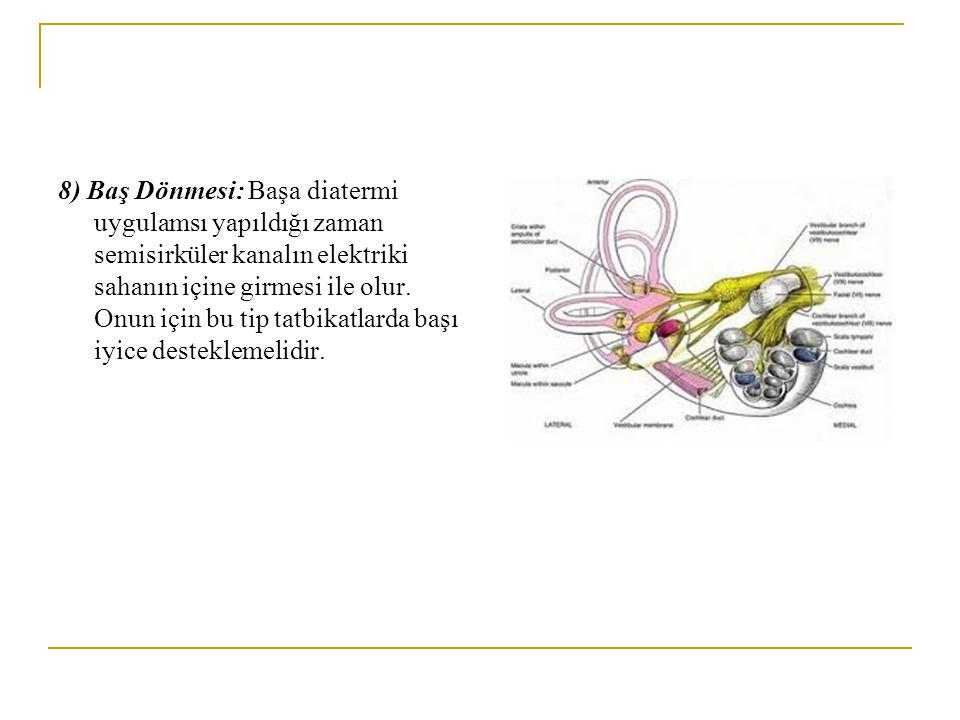 8) Baş Dönmesi: Başa diatermi uygulamsı yapıldığı zaman semisirküler kanalın elektriki sahanın içine girmesi ile olur.