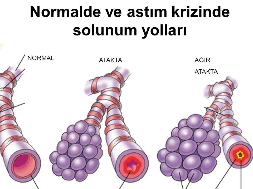 Normalde ve astım krizinde solunum yolları