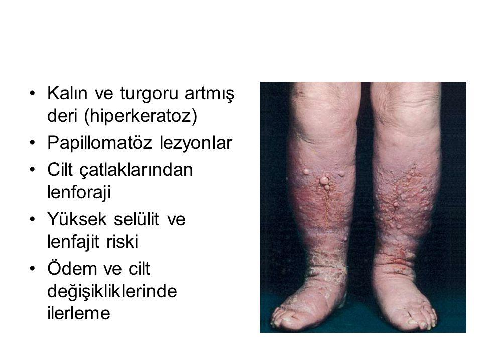 Kalın ve turgoru artmış deri (hiperkeratoz)