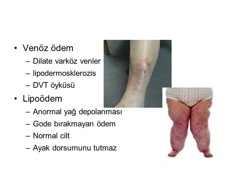 Venöz ödem Lipoödem Dilate varköz venler lipodermosklerozis DVT öyküsü