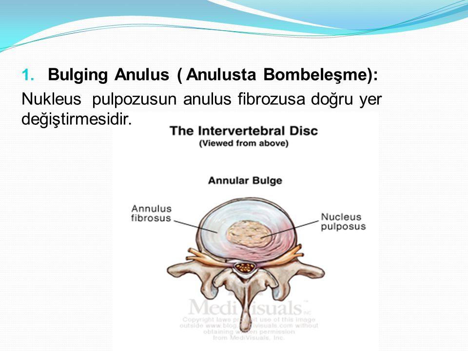 Bulging Anulus ( Anulusta Bombeleşme):