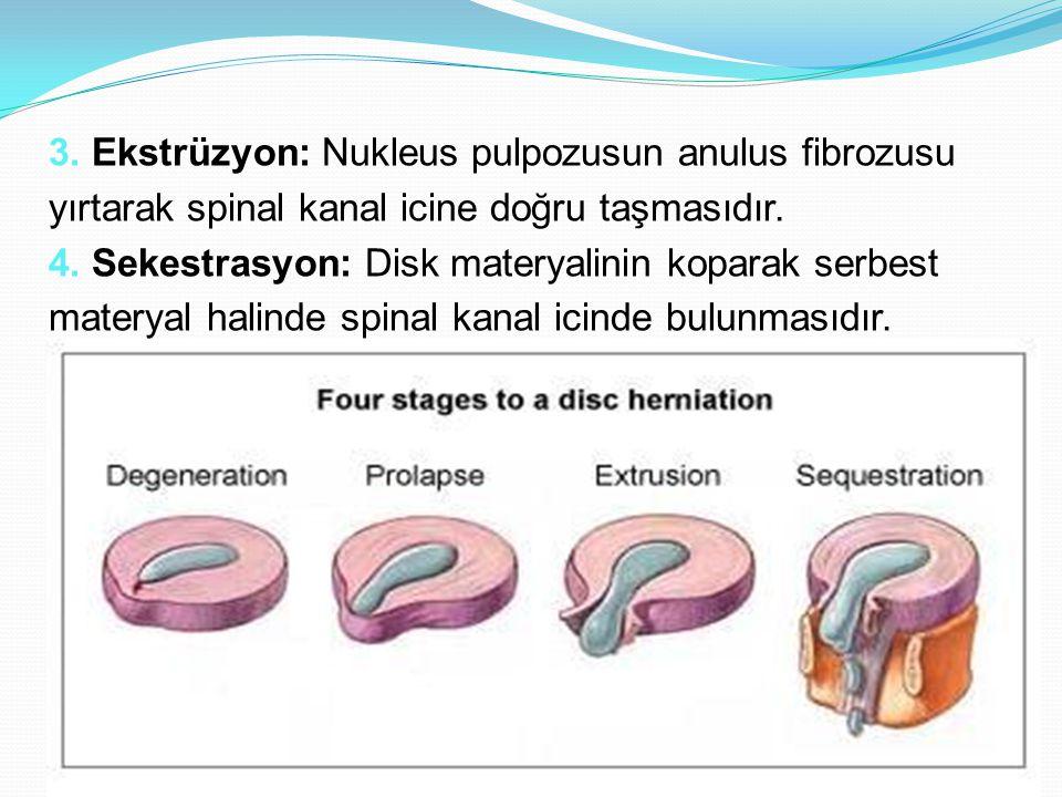 3. Ekstrüzyon: Nukleus pulpozusun anulus fibrozusu yırtarak spinal kanal icine doğru taşmasıdır.