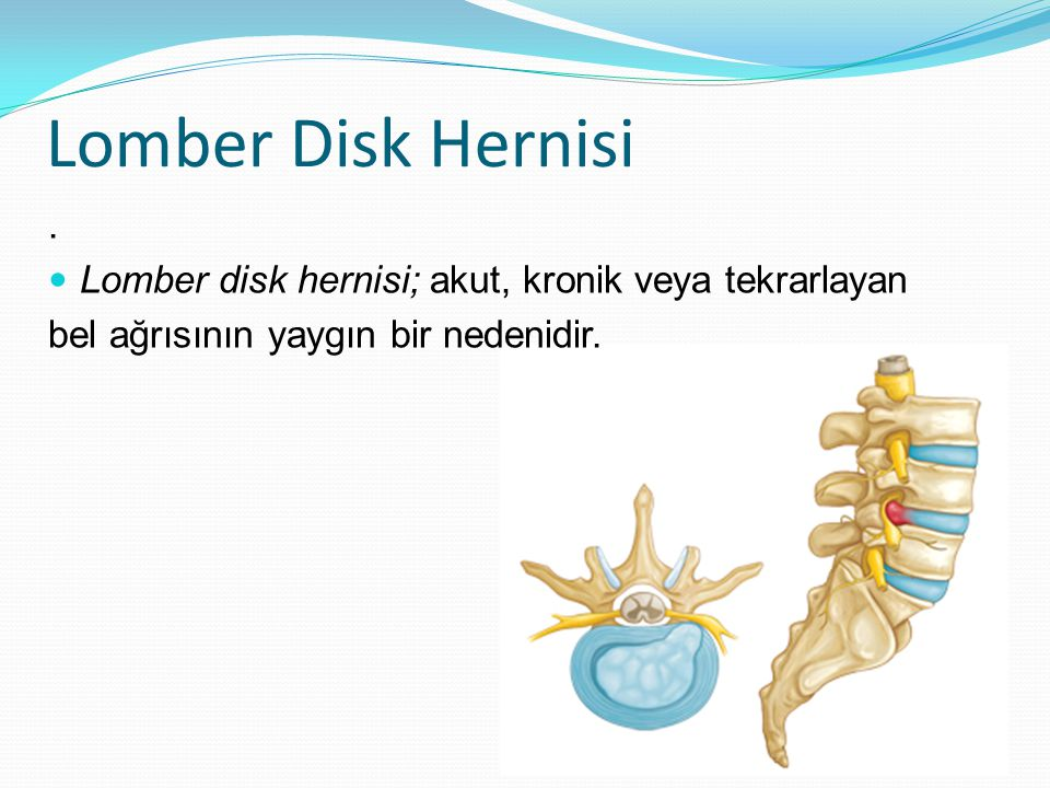 Lomber Disk Hernisi . Lomber disk hernisi; akut, kronik veya tekrarlayan.