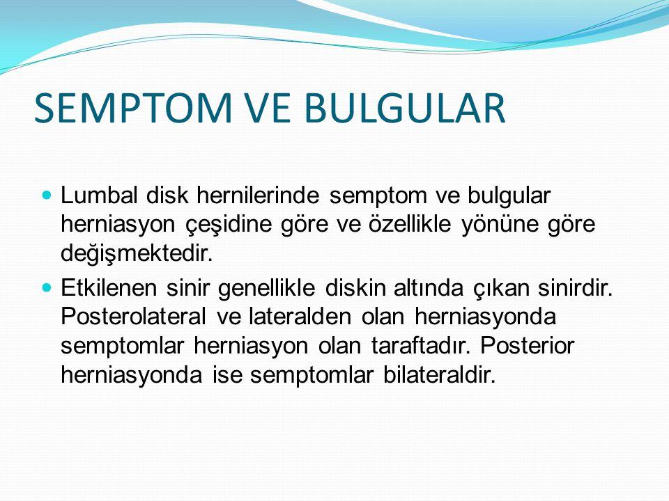 SEMPTOM VE BULGULAR Lumbal disk hernilerinde semptom ve bulgular herniasyon çeşidine göre ve özellikle yönüne göre değişmektedir.