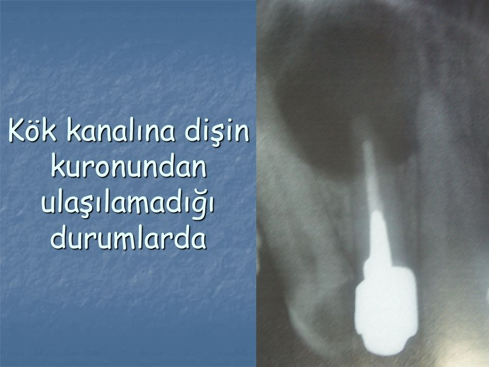 Kök kanalına dişin kuronundan ulaşılamadığı durumlarda