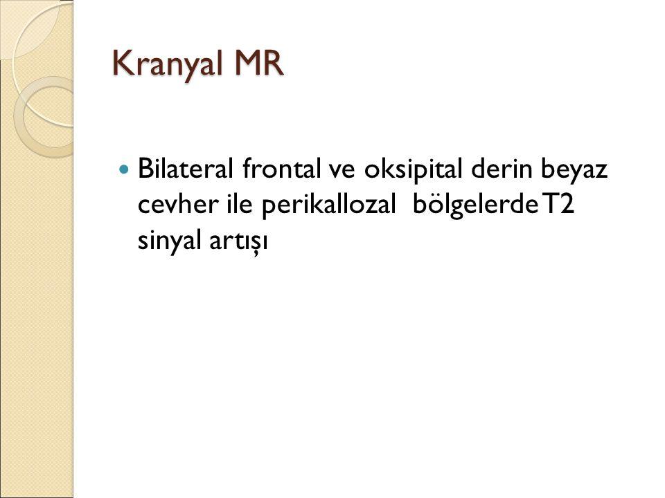 Kranyal MR Bilateral frontal ve oksipital derin beyaz cevher ile perikallozal bölgelerde T2 sinyal artışı.