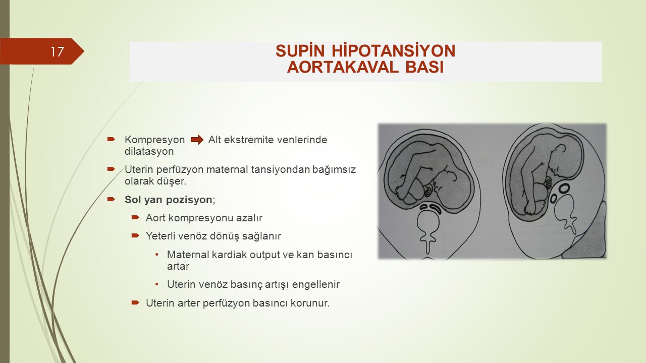 SUPİN HİPOTANSİYON AORTAKAVAL BASI