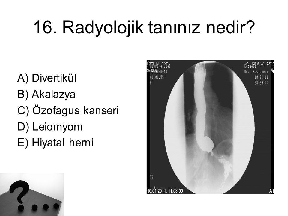 16. Radyolojik tanınız nedir