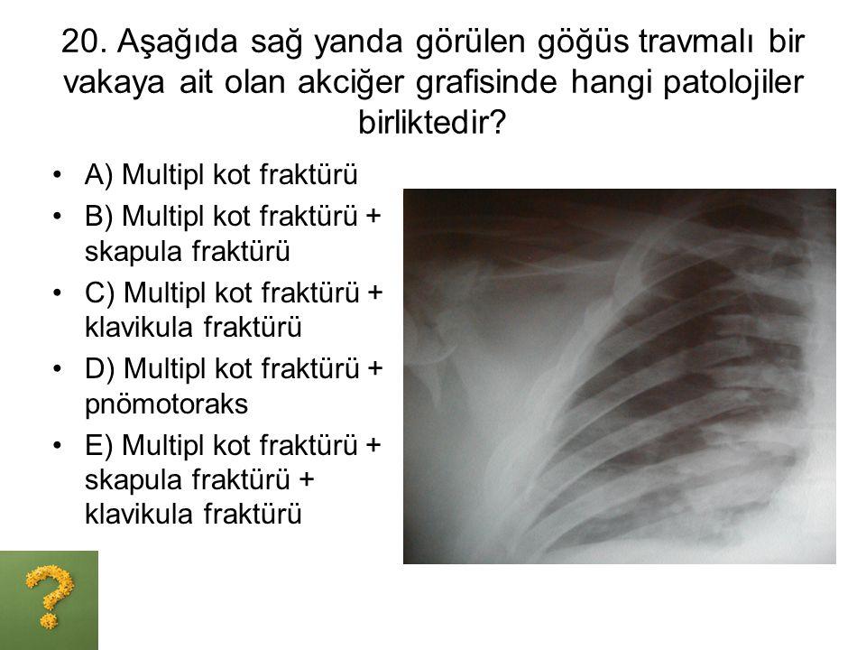 20. Aşağıda sağ yanda görülen göğüs travmalı bir vakaya ait olan akciğer grafisinde hangi patolojiler birliktedir