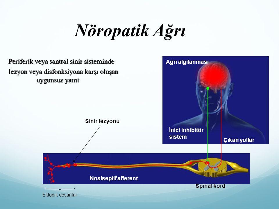 Nöropatik Ağrı Periferik veya santral sinir sisteminde