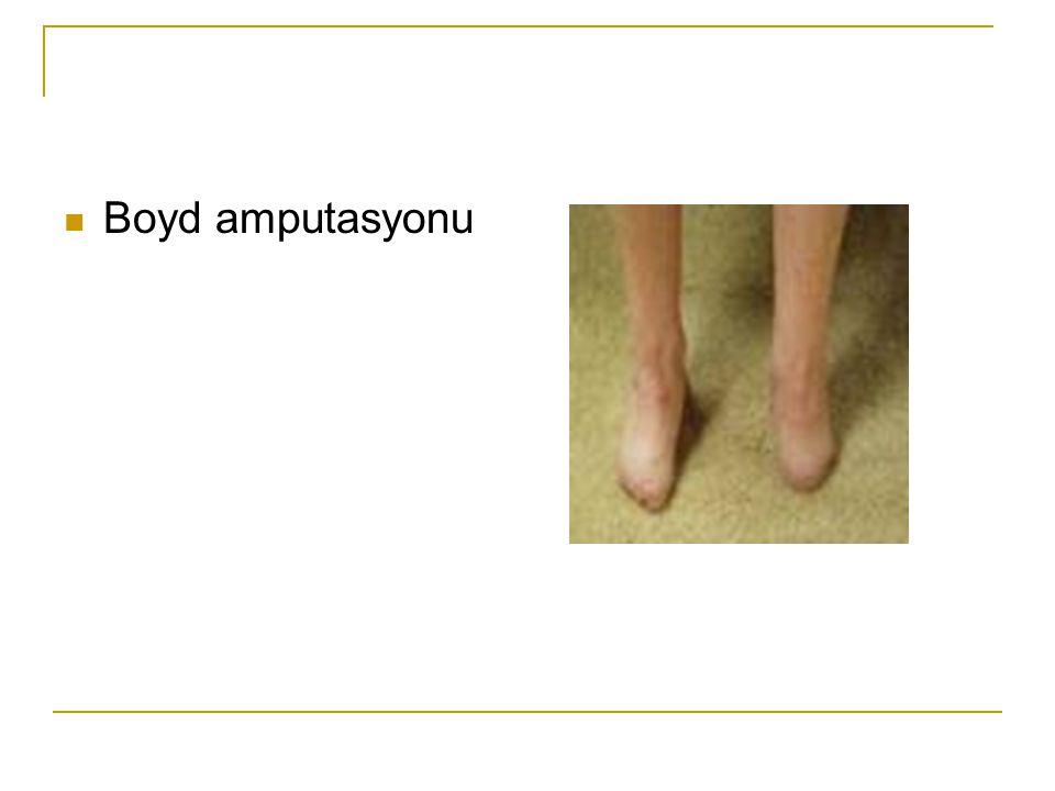 Boyd amputasyonu