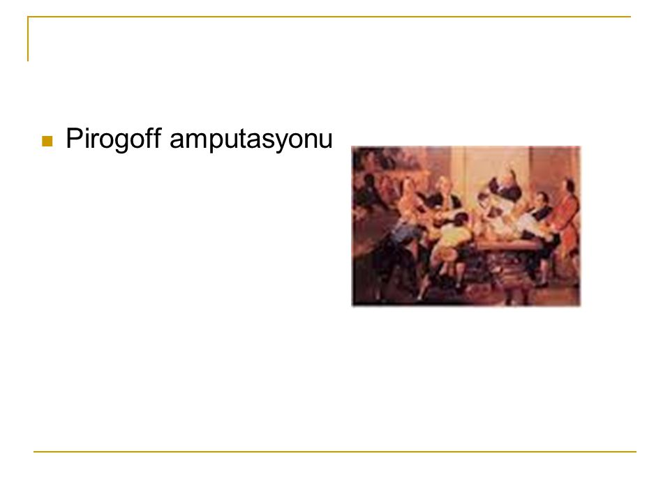 Pirogoff amputasyonu