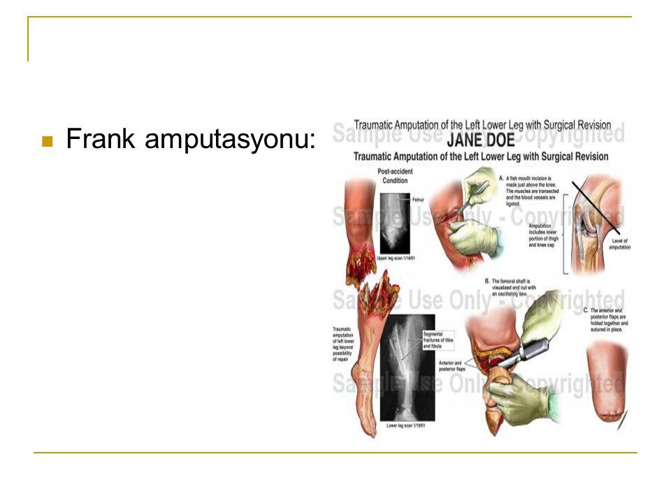 Frank amputasyonu: