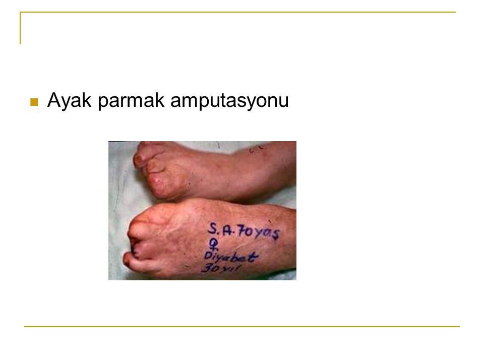 Ayak parmak amputasyonu